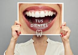 Tus dientes
